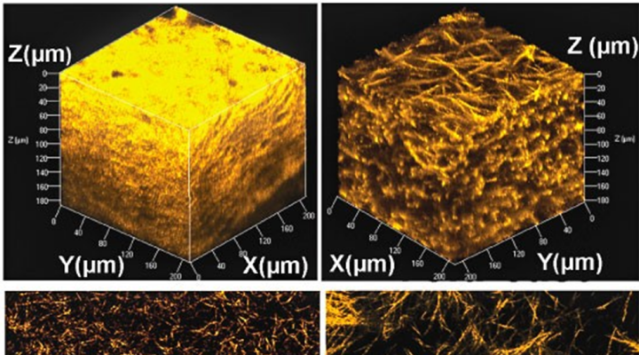 microfabricated collagen networks with two distinct microarchitectures